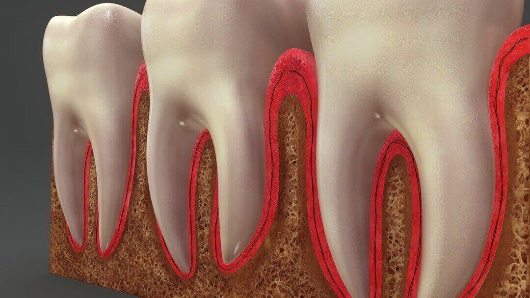 Thinpo - Diş Ağrısı Nasıl Geçer? Bilim İnsanları Çaresini Buldu!